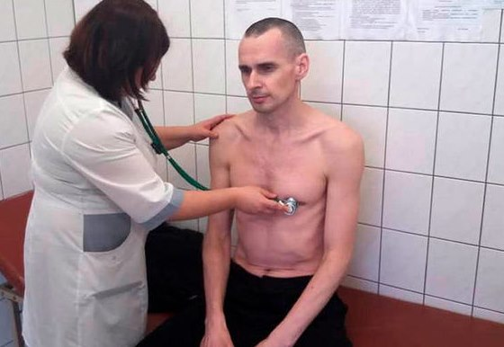 Сенцов восстанавливает силы после голодовки